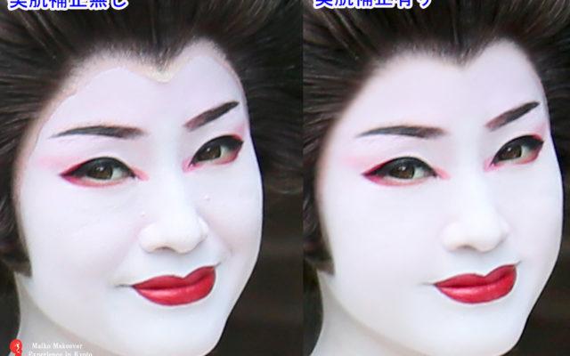 舞妓体験をしてみたいけれど。。。。肌のコンディションが気になるから大丈夫?とお思いの方へ!シワ・ニキビ跡・ほうれい線など無かったことに!!